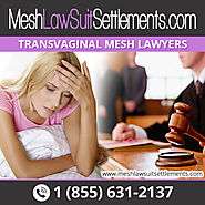 Complications in TVM That Need Lawyer Assistance