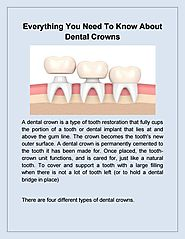 Dentist Brandon: Everything Need to know About Dental Implant | Bridges Dental by Laura Coyle Bridges - Issuu