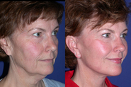 Facial Microcurrent: Do They Work Like a Facelift?