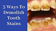 3 unusual hacks to Dramatically Remove Tooth Stains :0