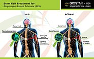 ALS Treatment in India