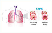 Stem Cell Therapy for COPD in India