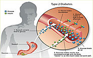 Diabetes Type II Treatment in India