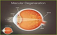 Macular Degeneration Treatment in India