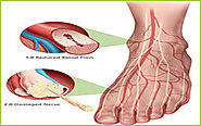 Neuropathy Treatment in India