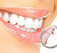 Cosmetic Dentistry | Dental Implants | Dentistree | Melbourne