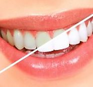 Teeth Whitening Offers | Dentistree | Melbourne