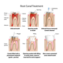 Root Canal Dentist Ca