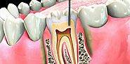 When do you need a root canal treatment?