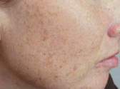 How to Get Rid of Brown Spots on Face Fast Naturally
