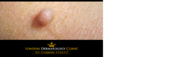 Skin Tag Removal | London Dermatology Clinic