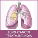Get Lung Cancer Treatment in India at Affordable Prices