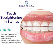 Teeth Straightening Staines