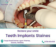 Teeth Implants Staines