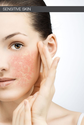 Is Your Skin Really Sensitive?
