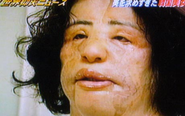 Cosmetic surgery addict injected cooking oil into her own face