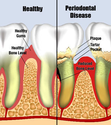 Gum Disease Brooklyn