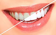 Teeth Whitening Treatment for Sensitive Teeth - Dentists Teeth Whitening