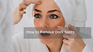 Dark Spots: Causes & How to Remove Dark Spots