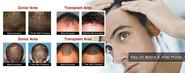 Hair Transplant & Hair Restoration Surgery By Best Surgeon in Boca Raton, Florida- Charles Medical Group