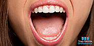 Website at https://topnovaorthodontics.com/why-is-my-mouth-dry/