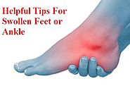 Effective Tips for Swollen Feet or Ankle - AstraHealth - Quora