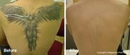 Tattoo Removal And Laser Tattoo Removal | Removing Tattoos Across The UK |