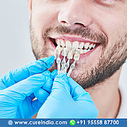 Affordable All on Four Dental Implants in India || CureIndia