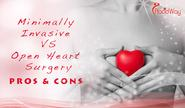 Minimally Invasive Surgery versus Open Heart Surgery Pros and Cons