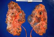 Kidney Disease - Kidney Treatment - Beat Kidney Disease