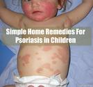 Simple Home Remedies For Psoriasis in Children