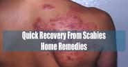 Quick Recovery Scabies Home Remedies