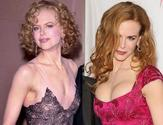 Nicole Kidman Plastic Surgery To Enhance Her Breast Size
