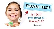 How to Deal with Crooked Teeth the Best Way