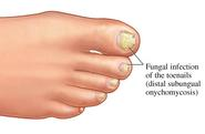 Fungal Infection Treatment | Fungal Nail Treatment
